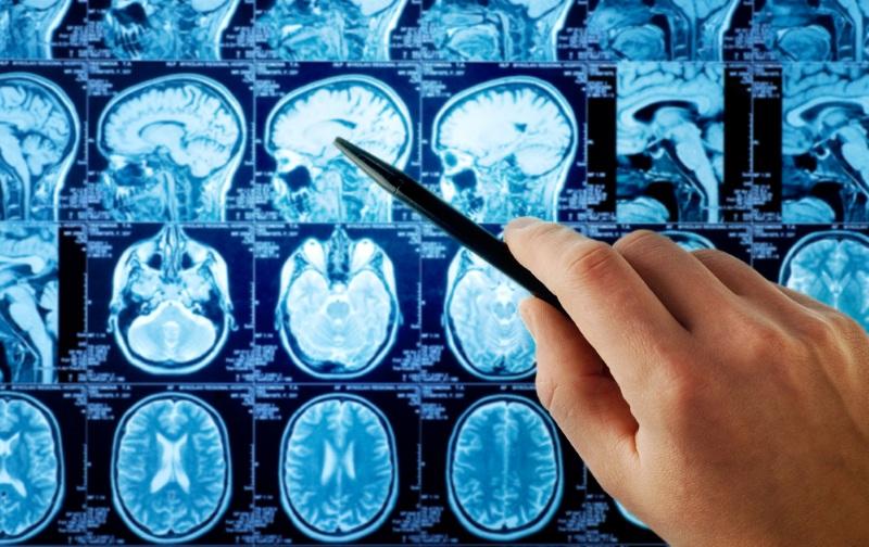 کارنامه و درصد های آخرین رتبه قبولی تکنولوژی پرتوشناسی رادیولوژی پردیس خودگردان بین الملل کنکور 96 - 97